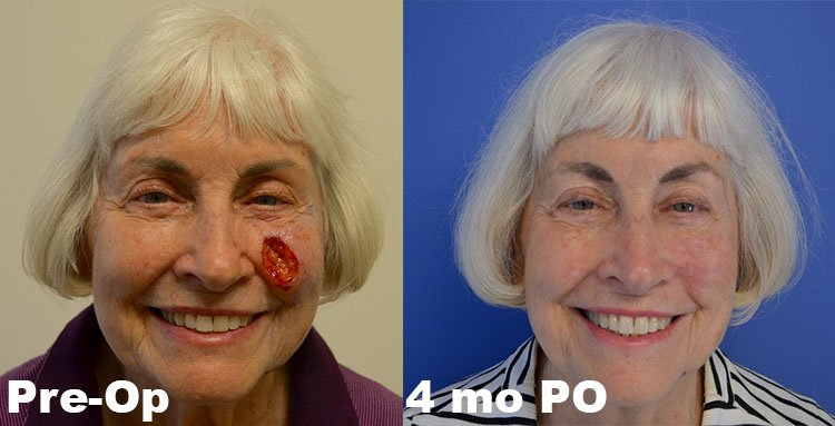 Mohs Reconstruction - Before & After - Cheek