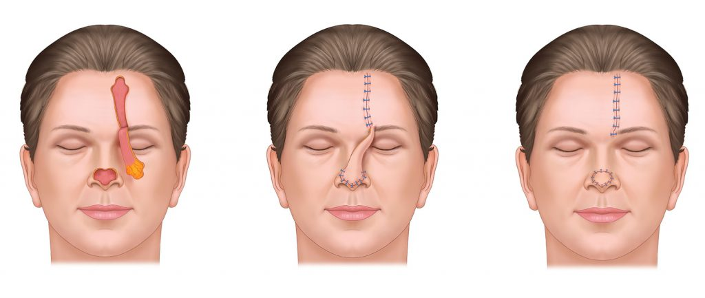 Forehead Flap for Mohs Reconstruction