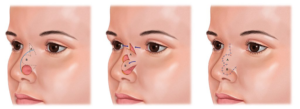 Nose Reconstruction of Mohs after Mohs surgery with Bilobed Flap
